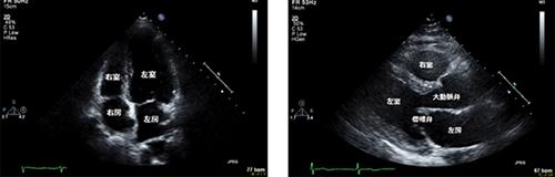 臨床検査科3 心臓超音波検査