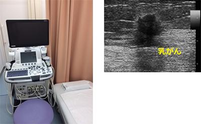 臨床検査科3 乳腺超音波検査