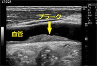 臨床検査科3 頸動脈超音波検査