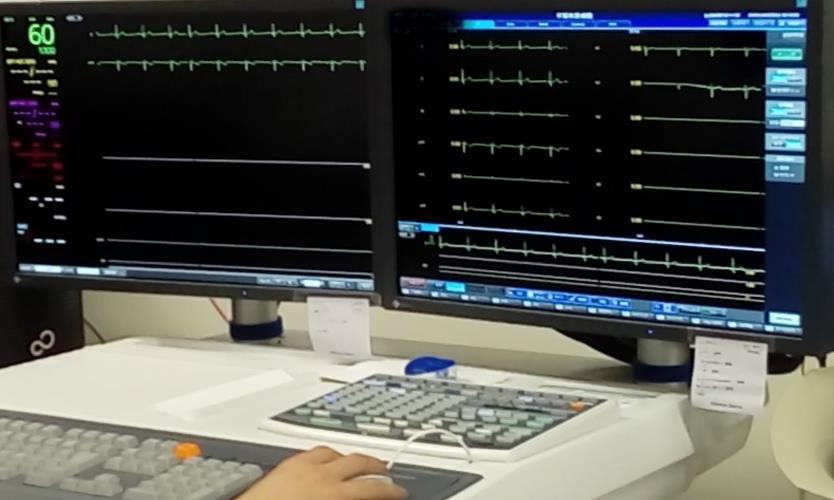 臨床業務 心臓カテーテル検査業務